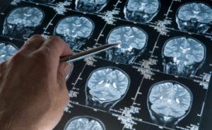 Методы исследования современной когнитивистики