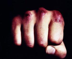 Болеют ли андрофобией сами мужчины?