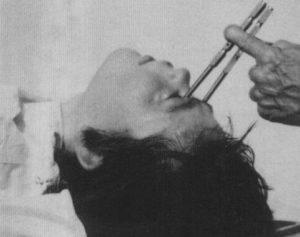 Техника проведения операции на мозге