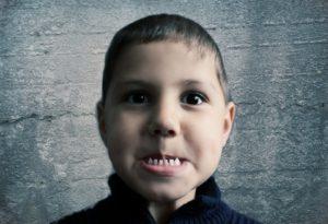 Основные причины скрипения у детей и взрослых